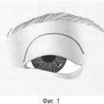 Птоз фимоз эпикантус
